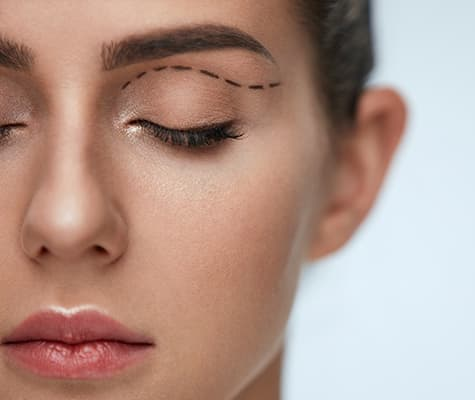 Woman with eyelid surgery marker
