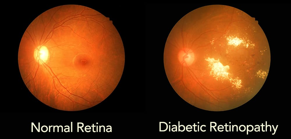 Photo of a normal retina compared to a diabetic retina